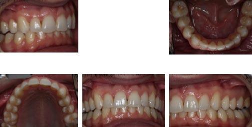 solucion dental casos complejos invisalign full