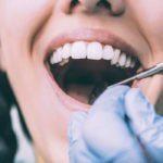 Invisalign Full para casos moderados y severos de dientes apiñados